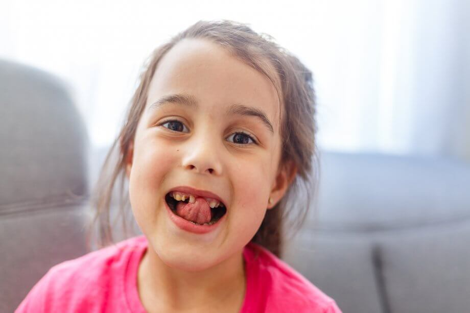 young girl with missing teeth