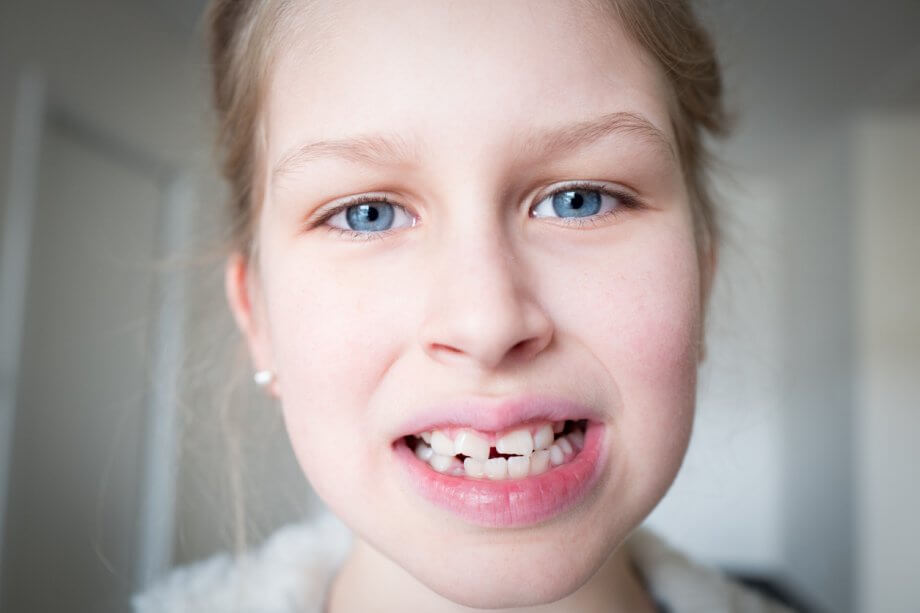 Young Girl Showing Missing Permanent Teeth